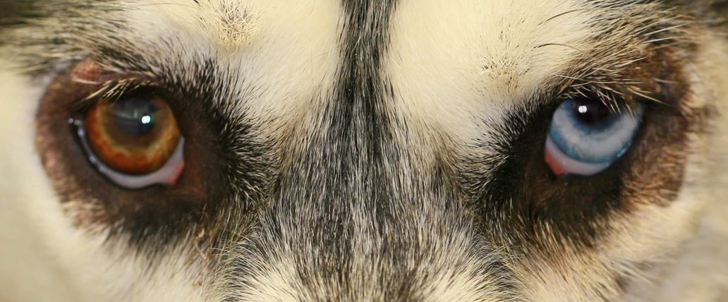 Dark Circles around Husky eyes Caused by Zinc-Responsive Dermatosis